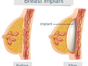 Breast Augmentation In Iran Affordable Breast Augmentation